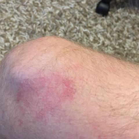 Das ist am Bein wo es aufhört  - (rot, Ausschlag, jucken)