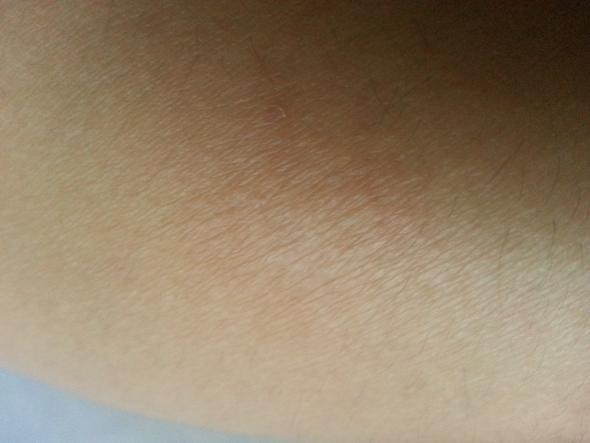 rote Hautstelle - (Krankheit, Haut)