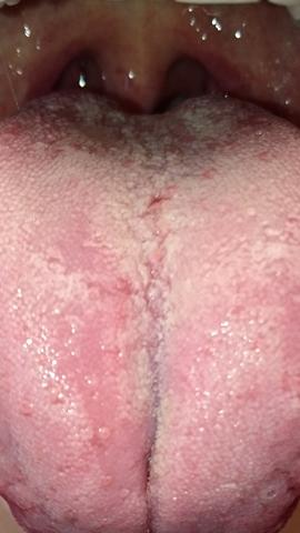 Zunge - (Gesundheit, Zunge)