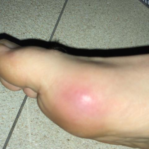 Fuß mit Gnubbel  - (Gesundheit und Medizin, Füße, Roter Gnubbel)