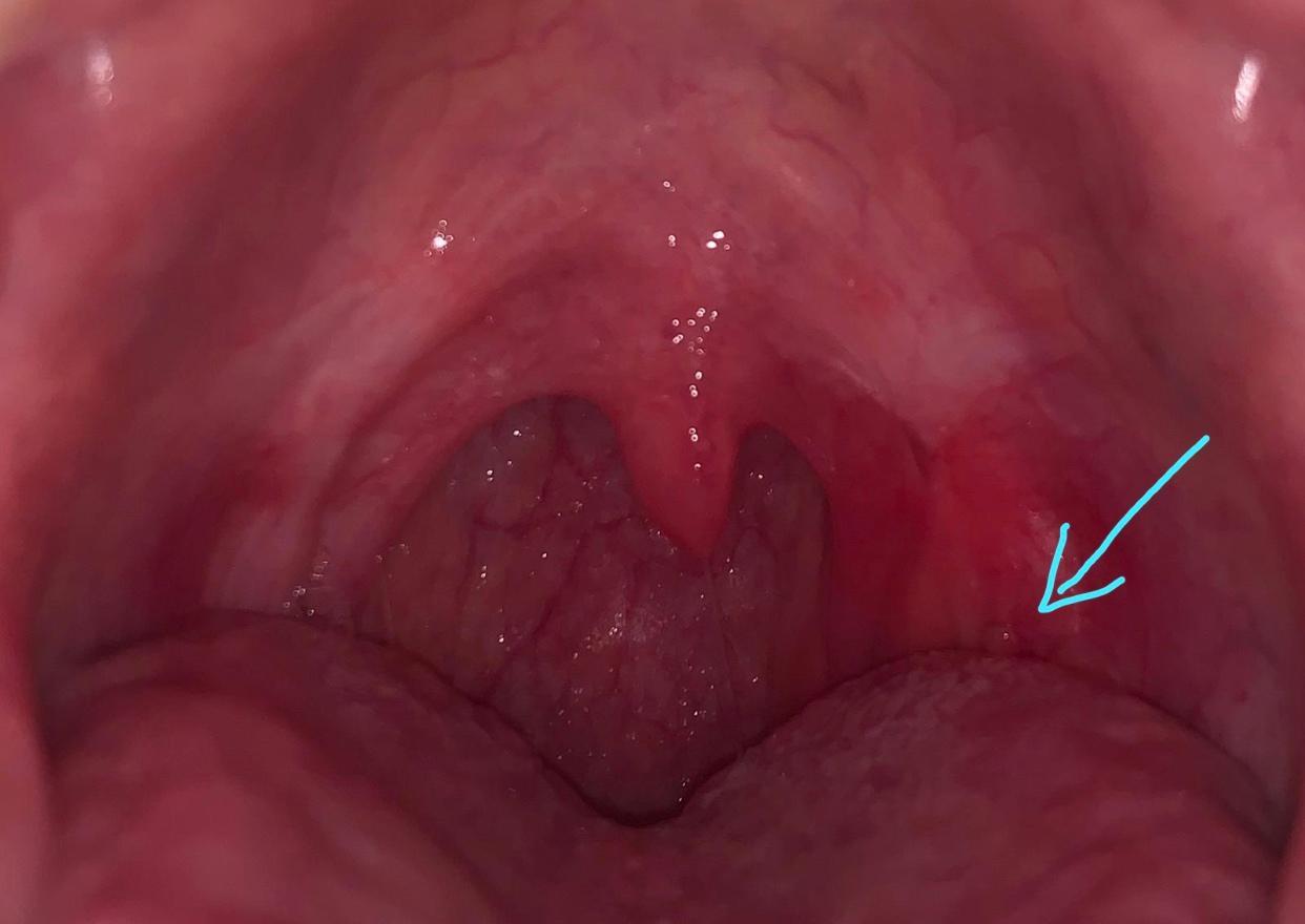 Was ist das für ein Knubbel im Rachen? (Gesundheit und