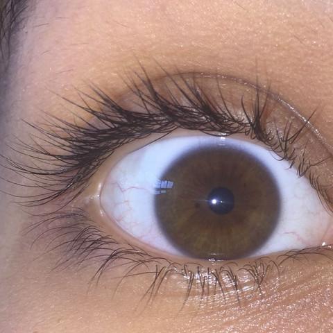 Was Ist Das Fur Ein Schwarzer Punkt In Meinem Auge D Augen