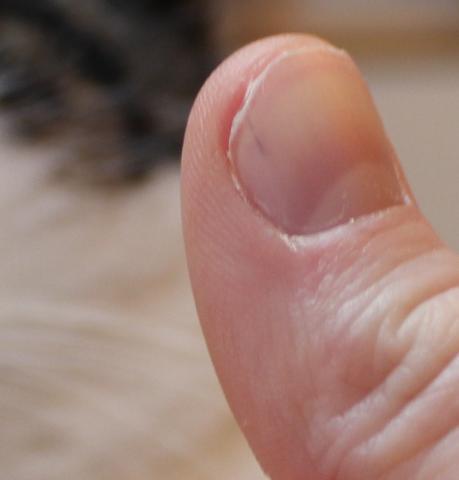 Das Reinigen der Nägel von gribka auf dem Heim