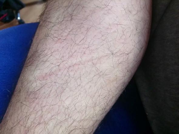 Was Ist Das Für Ein Steifen Auf Meiner Haut Der Nicht Weggeht