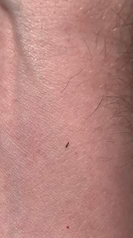 Was ist das für ein winziges Insekt?