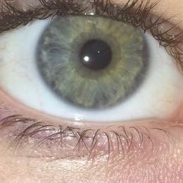 Selten augen blau grüne Grüne Augen