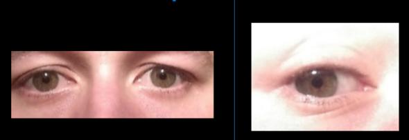 Augen - (Körper, Augen)