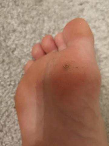 Blase unterm fuß behandeln   Blasen an den Füßen richtig