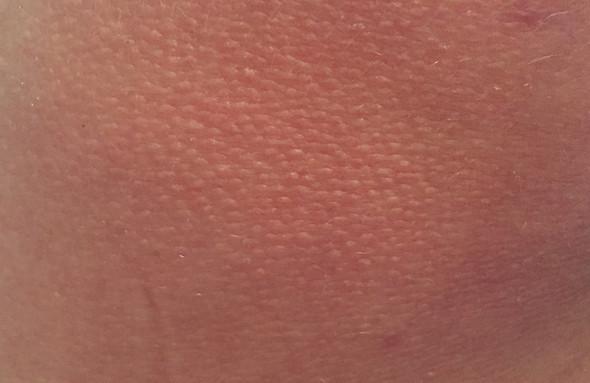 Hautstelle - (Haut, Dermatologie)