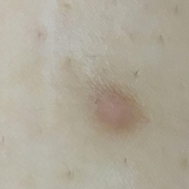 Was ist das für ein Ausschlag? hormonell und/oder Stiche