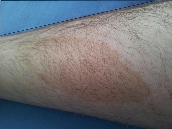 fleck - (Beine, Flecken, Leberfleck)