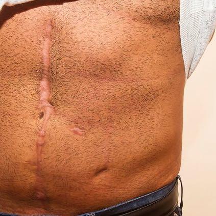 Unter Brust bis Bauchnabel und das untere Loch hat er mehr seitlich und oben  - (Freunde, Krankheit, Narben)