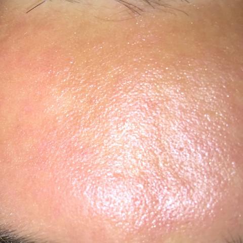 Komische Pickel  - (Haut, Akne, Behandlung)