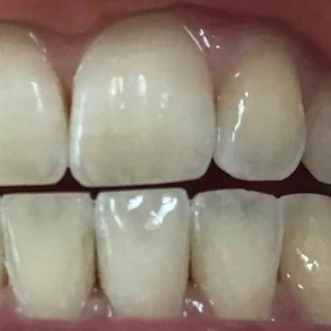 Was grau zahn tun wird Schwarzer Zahn