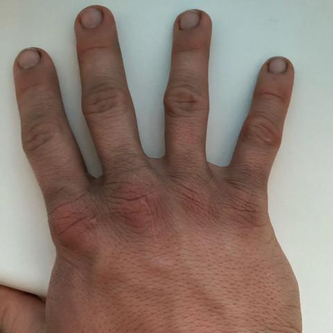 Was ist das? Hand schwarz?