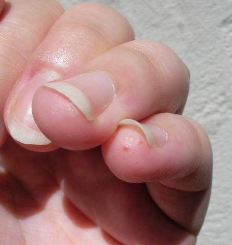 Kleiner Finger und Ringfinger betroffen - (Hautkrankheit, kapillare, Psysiologie)