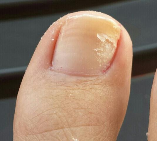 Zehen Nagel - (Gesundheit, Haut, Nägel)