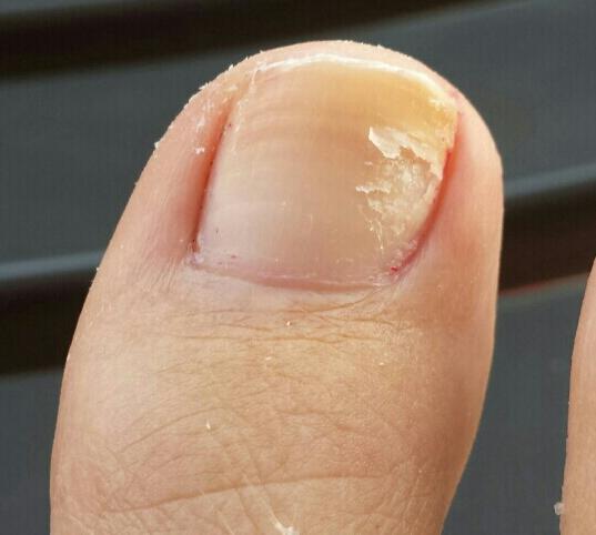 Haut- gribok die Behandlung von den Volksmitteln