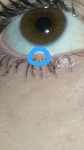 Was Ist Das Pickel Oder Gerstenkorn Medizin Augen
