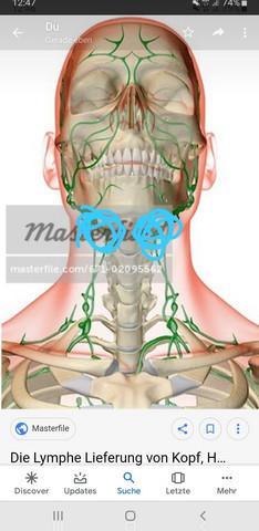 Geschwollen lymphknoten am rechts hals Vergrößerte und