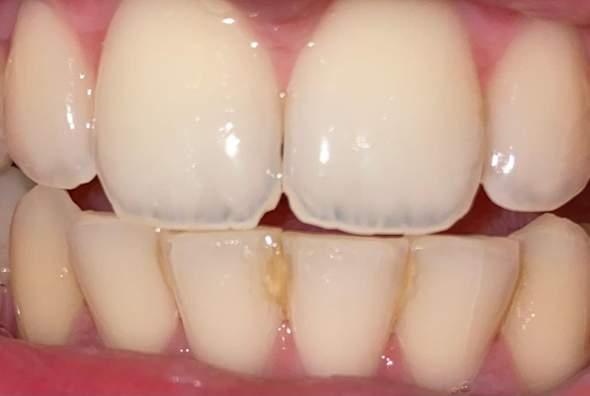 Was ist das zwischen den Zähnen?