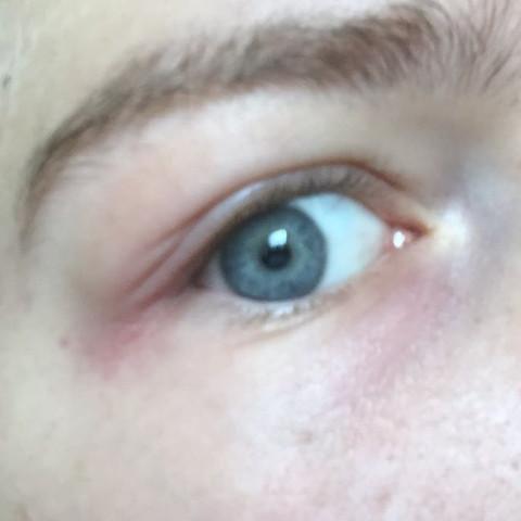 Auge  - (Gesundheit, Körper, Schmerzen)