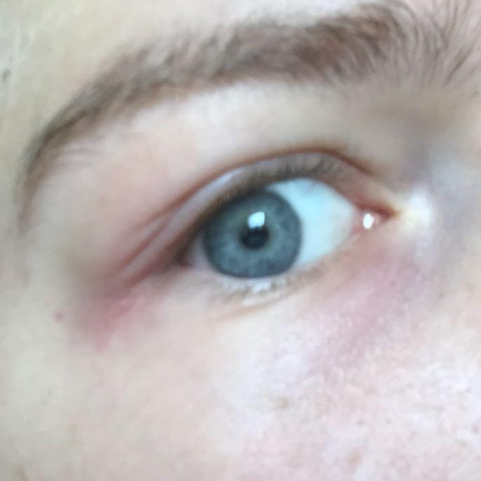 Was Ist Los In Meinem Körper: Was Ist Denn Jetzt Mit Meinem Auge Los-/:;(? (Gesundheit