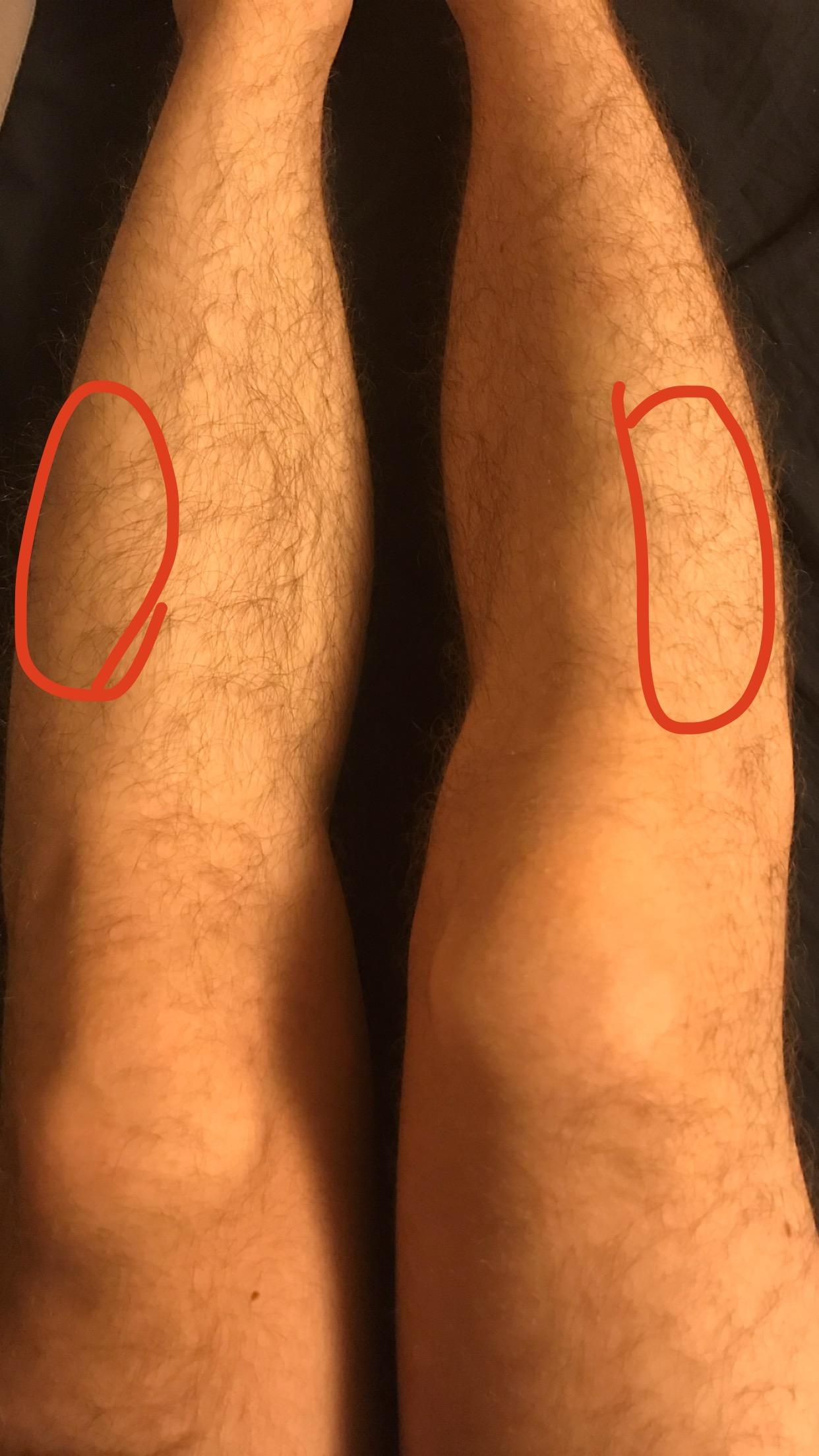 Was ist die Ursache für die Schmerzen in meinen Beinen