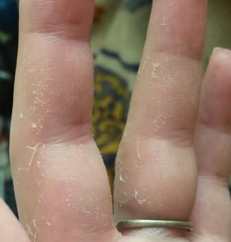 Haut löst sich ab - (Krankheit, Haut, Husten)