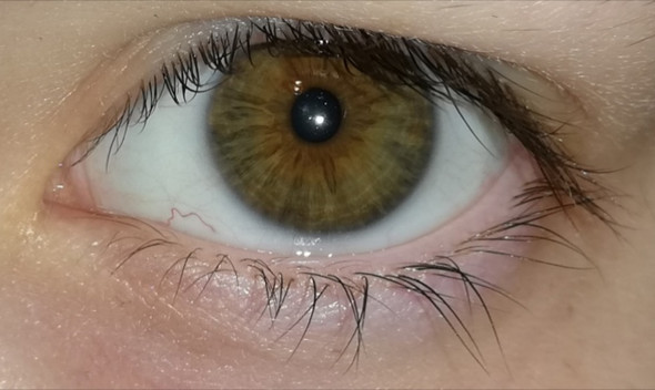 Graue Augenfarbe