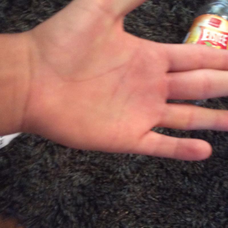 Was ist mir meinem klein Finger? (gebrochen, Sehne, gerissen)