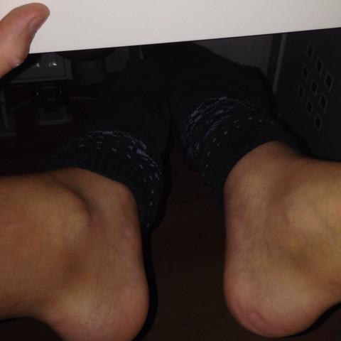 Rechts ist der verletze Knöchel.. - (Sport, Fußball, Knöchel)