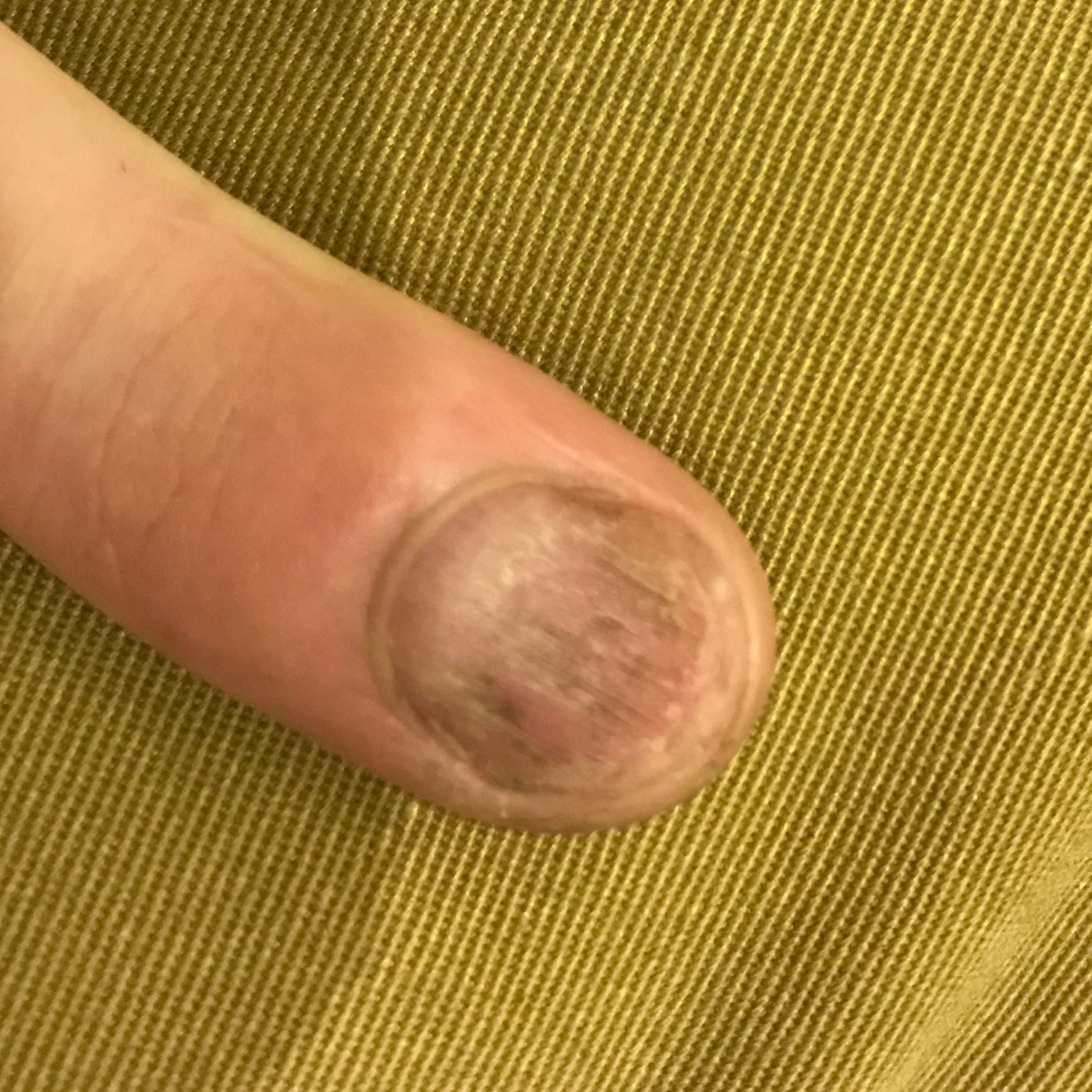 Was ist mit meinen Fingernagel? (Medizin, Arzt, Krankheit)