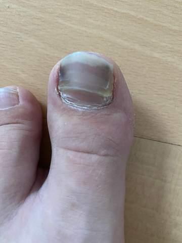 Ein fußnagel ist was Fußnagelmodellage mit