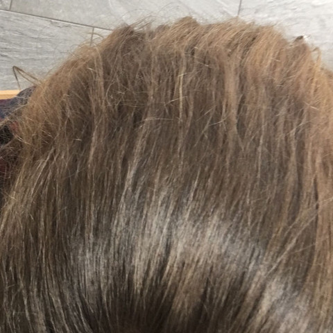 Was ist mit meinen Haaren los und was kann ich dagegen machen?