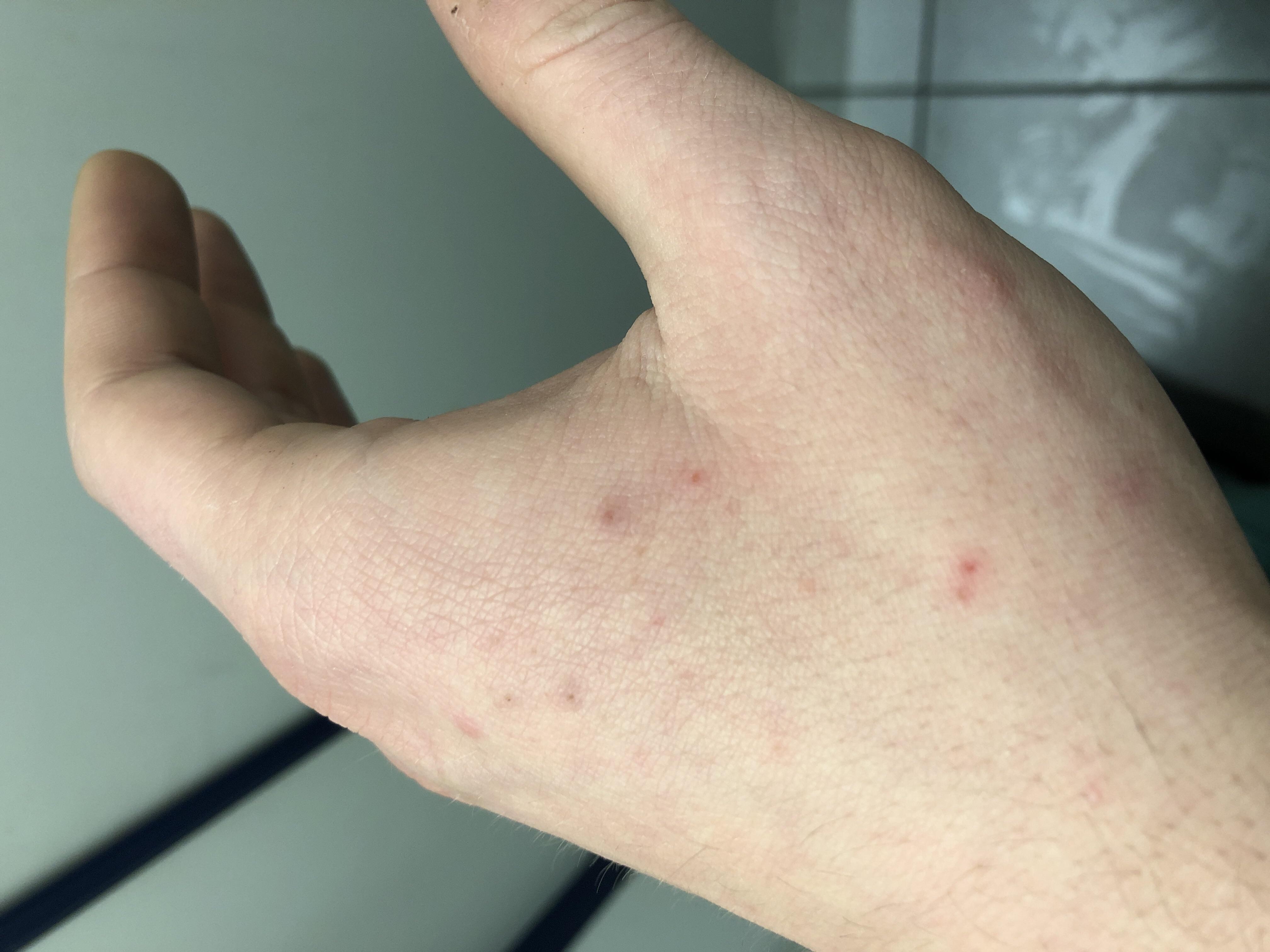 Hautausschlag Bei Erkältung