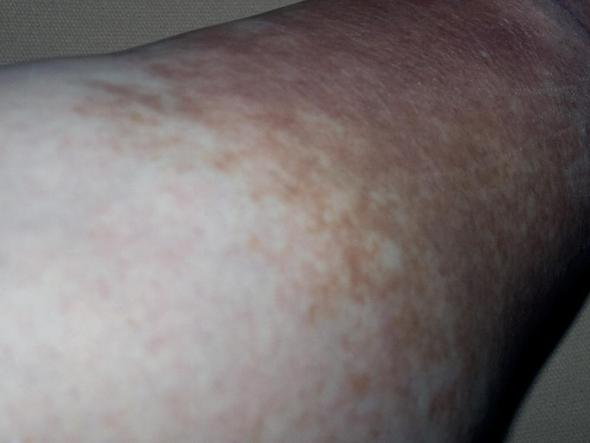 Was kann das sein? Verfärbung am Bein (Haut, Beine)