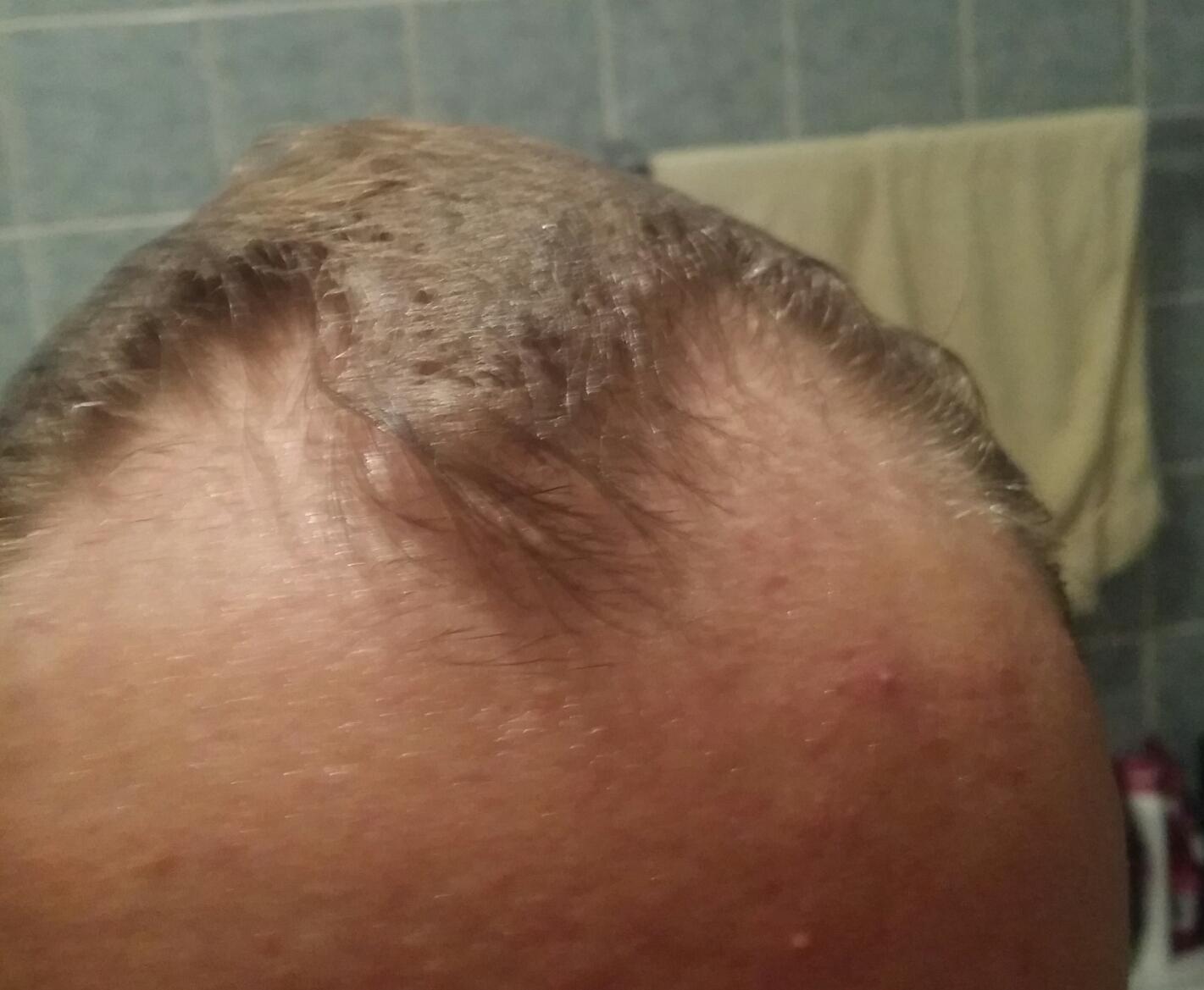 Was Kann Man Machen Gegen Haarausfall