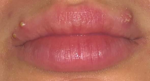 Was kann ich gegen diese Pickel tun (Lippen)? (Hautarzt