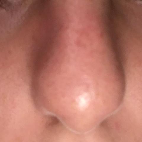 Und auf meiner Nase die Rötung sehr stark  - (Gesundheit, Haut, Pflege)