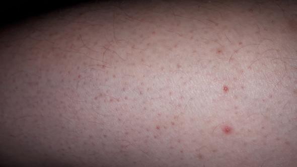 Am rote glied flecken Hautausschlag im