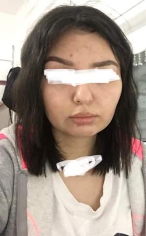 Was kann ich gegen mein Assymetrisches Gesicht tun außer ne op?