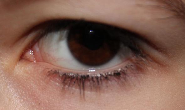 Mein Auge - (Augen)