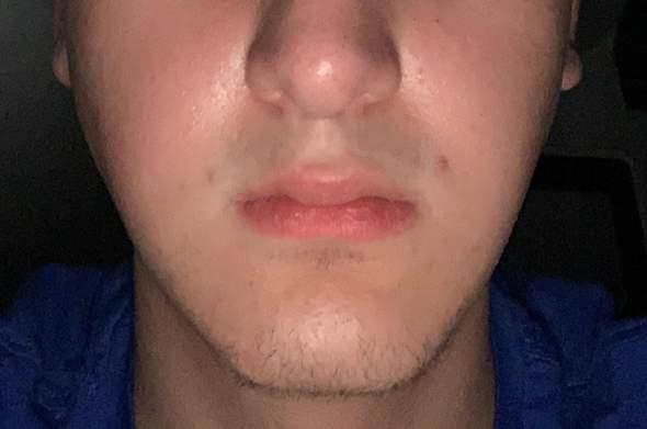 Was kann ich gegen schiefe Gesichtsform/Wangen machen?