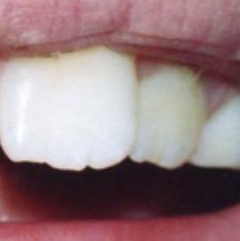 Tun was hässliche zähne Zähne brechen