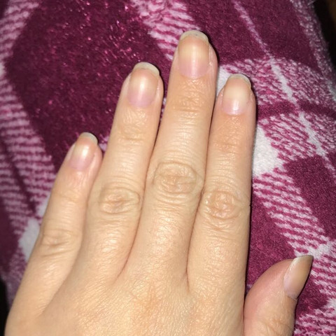 Was kann ich machen das meine nägel etwas gepflegter aussehen? Bzw schöner?