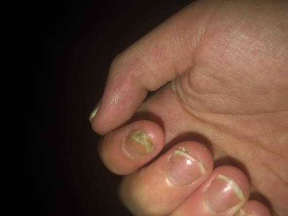 Was kann ich machen mit solch kapputen Nägeln?