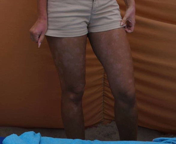 Beine  - (Krankheit, Neurodermitis)