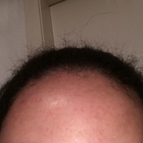 Ab haare stehen Haare stehen