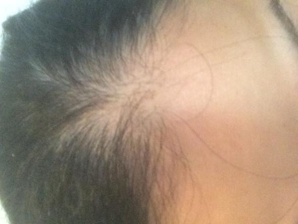So sieht es aus - (Haarausfall, ttip, Fehlende haare)